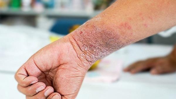 Bệnh chàm da còn có tên gọi là bệnh Eczema