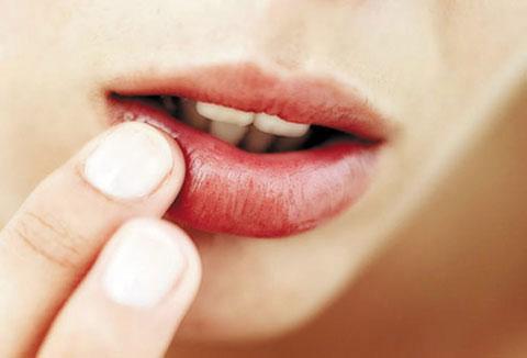 Bị chàm môi bôi thuốc gì?
