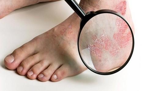 Hắc lào ở chân ảnh hưởng đến sinh hoạt của người bệnh