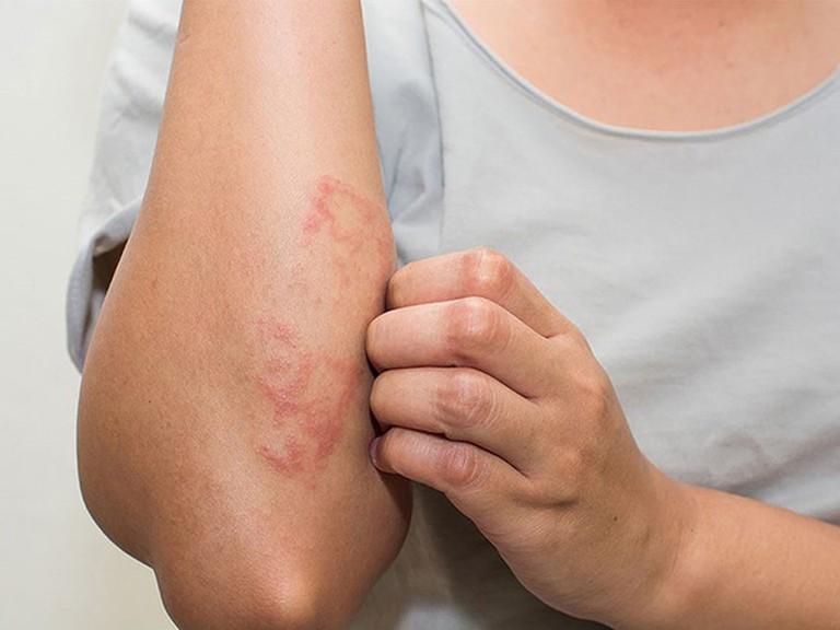 Bệnh chàm gây ra các triệu chứng khô rát, ngứa, mụn nước đỏ trên da