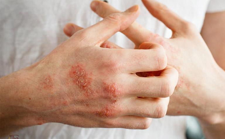 Triệu chứng bệnh chàm ở tay