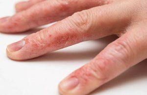 Chàm khô đầu ngón tay