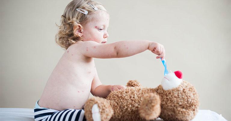 Cho trẻ tránh xa các tác nhân gây bệnh