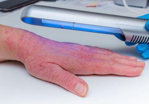 Điều trị vảy nến bằng UVB là thế nào?