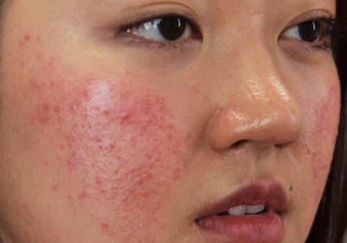 Nguyên nhân khiến da mặt bị dị ứng nổi mẩn ngứa