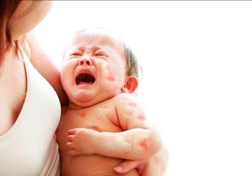 Như thế nào là dị ứng đạm sữa bò ở trẻ em?