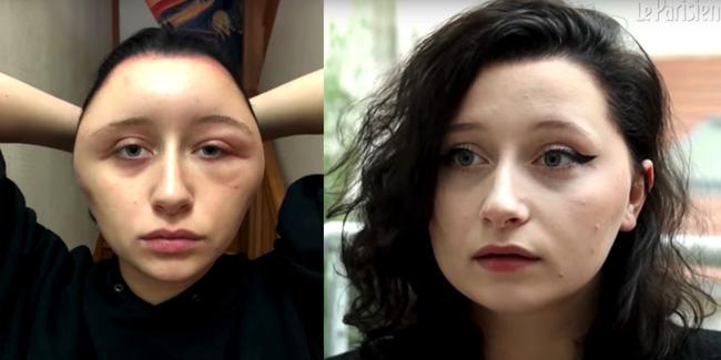 Dị ứng thuốc nhuộm tóc là do đâu?