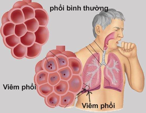 Viêm phổi là gì?