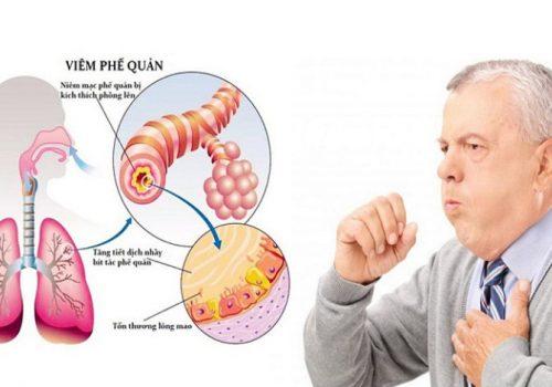 Viêm phế quản là gì? Nguyên nhân triệu chứng bệnh