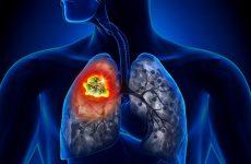 Viêm phổi là gì? Triệu chứng, nguyên nhân và phác đồ điều trị bệnh