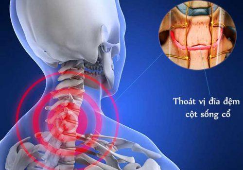 cách chữa thoát vị đĩa đệm cột sống cổ