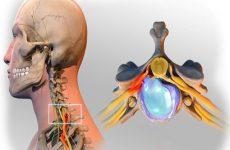 thuốc trị gai cột sống lưng