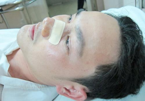 Phần cấu tạo xương mũi chi tiết gồm: