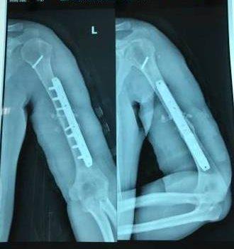 gãy xương cánh tay bao lâu thì lành