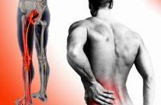đau thắt lưng trái tê chân