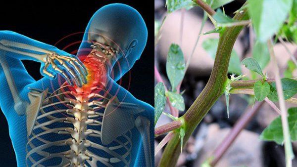 Bài thuốc trị bệnh khi gai cột sống