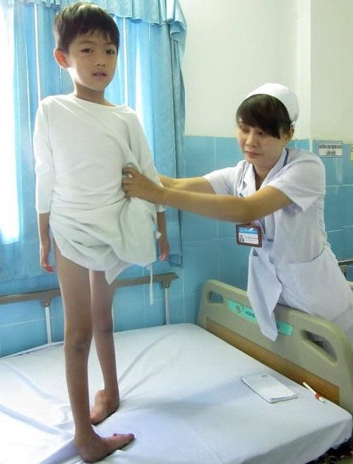 bệnh teo cơ tủy sống sma ở trẻ tuổi vị thành niên