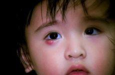Cách chữa lẹo mắt ở trẻ em