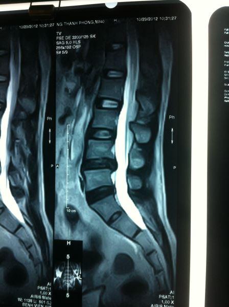 Khái niệm chụp cộng hưởng từ MRI