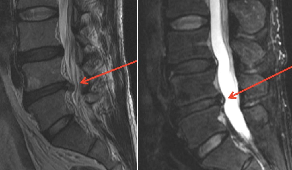 Chụp X-quang chẩn đoán thoát vị đĩa đệm