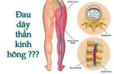 đau cột sống gần mông
