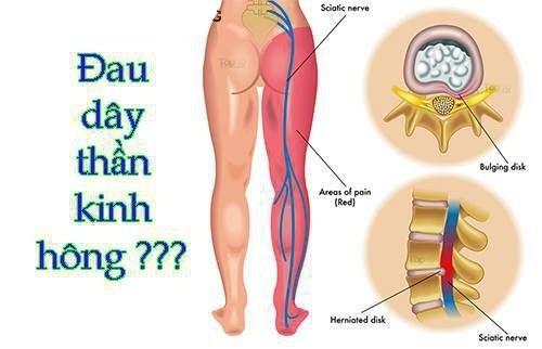 Hội chứng rễ thần kinh hông
