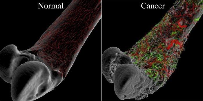 8 dấu hiệu của bệnh ung thư xương hay gặp nhất