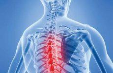 đau xương cột sống lưng