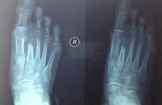Gãy xương bàn chân số 5
