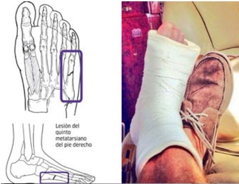 Kỹ thuật y tế chẩn đoán gãy xương bàn chân số 5
