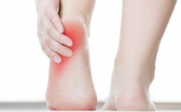 Sưng khớp cổ chân gây đau nhức