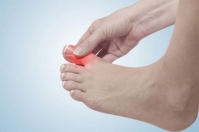 Gãy xương ngón chân có cần bó bột không?