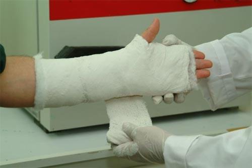 Biện pháp giúp gãy xương tay hồi phục nhanh chóng