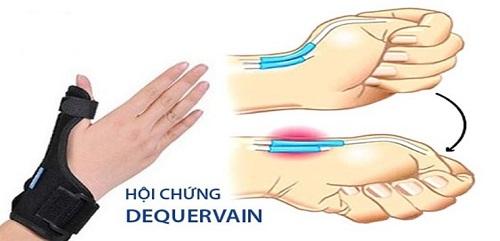đau các khớp ngón tay là bệnh gì có liên quan đến hội chứng dequervainavatar