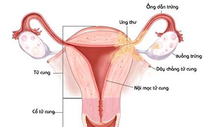 Niêm mạc tử cung là gì?