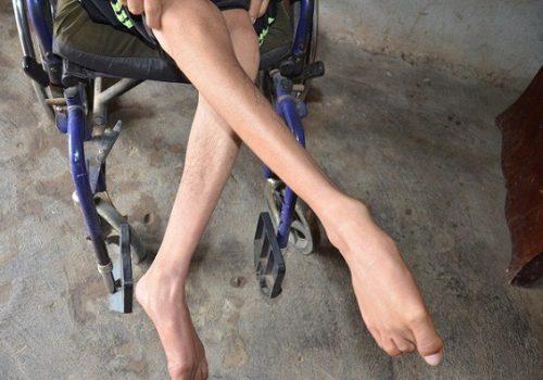 phục hồi teo cơ chân