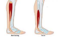 teo cơ sau chấn thương