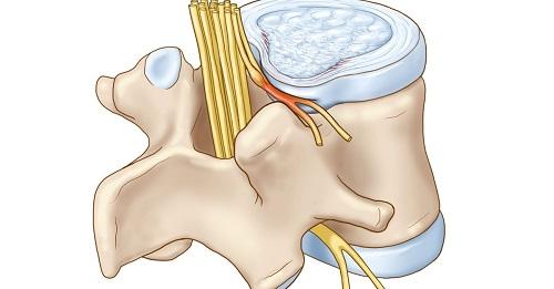 Bệnh xương khớp gây ra Hội chứng rễ thần kinh hông