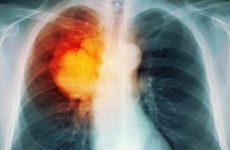 Ung thư phổi di căn vào xương