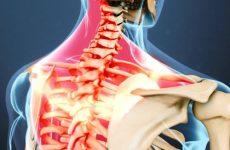 viêm dây thần kinh vai gáy