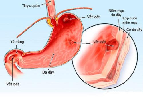 Viêm loét dạ dày gây dau lưng