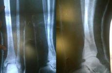 gãy xương mác cẳng chân